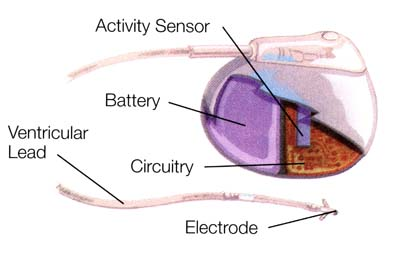Figure 1: In a traditional pacemaker design, the battery takes up a significant area of the implantable device