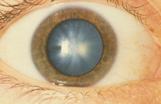 Stem cells restore vision after cataract surgery