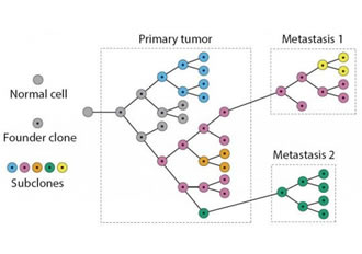 Software helps to identify course of cancer metastasis