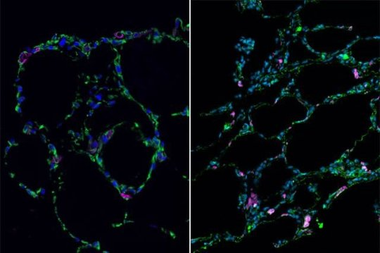 Stem cells grown into 3D lung-in-a-dish