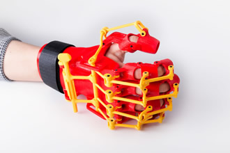 The making of a 3D printed rehabilitation orthosis