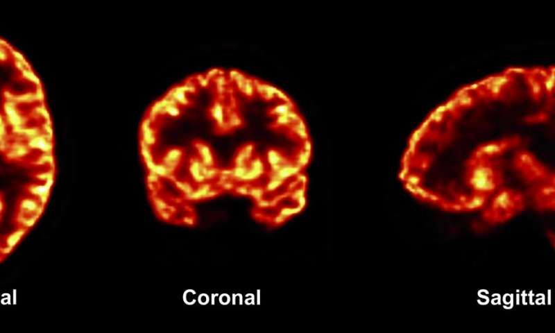Imaging tool will be applied to common brain disorders