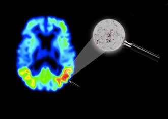 Imaging technique in Alzheimer's disease