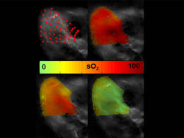 Enabling the visualisation of oxygen in tissue
