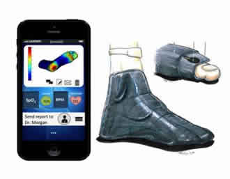 Smart socks help with diabetic neuropathy