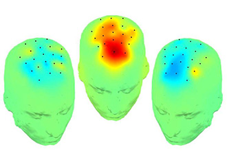 Brain stimulation improves cognition in Parkinson's disease
