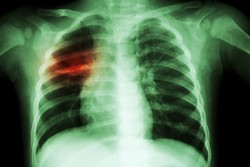 Improving the diagnosis of tuberculosis