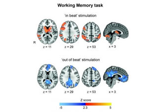 Electricity improves short-term memory