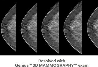 FDA approves Genius 3D Mammography Exam