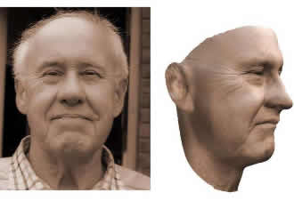 3D models of faces could help in reconstruction surgery