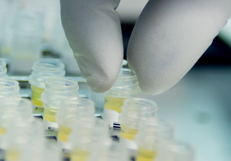 Biomedical startup obtains CE mark for blood analysis platform