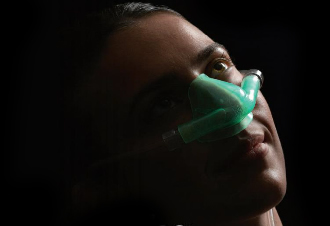 AXESS Sedation Mask to improve delivery of gases