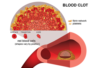 Optical clearing technique studies the inside of blood clots