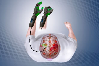 Stroke rehab device deduces intention directly from brain