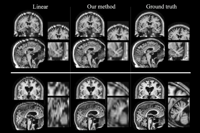 Boosting quality of patient MRIs unveil stroke outcomes