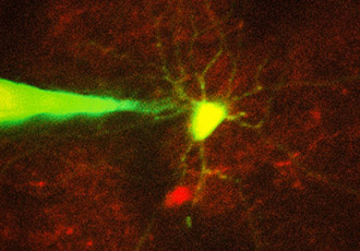 Robotic system is capable of monitoring specific neurons