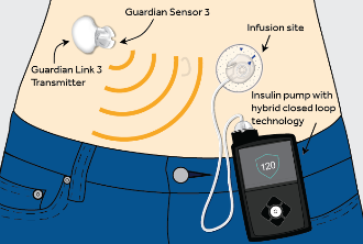 World's first hybrid closed loop system treats Type 1 diabetes
