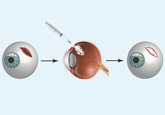 Portable gel could save an injured eye