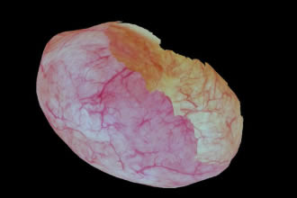 Imaging technology creates 3D bladder reconstruction