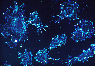 Cell culture system offers cancer breakthrough