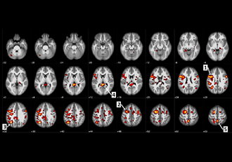 Machine learning algorithms help predict schizophrenia