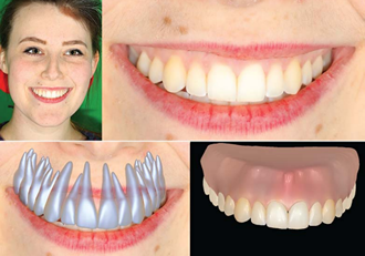 Allowing non-invasive reconstruction of teeth