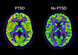 PTSD research identifies potential path to treatment