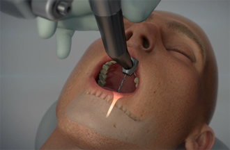 First robotic dental surgery system is now cleared by FDA