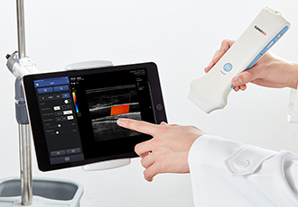 App-based ultrasound system receives FDA clearance