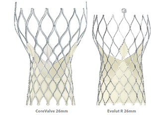 Aortic valves approved for intermediate risk patients
