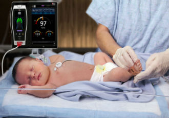 Breathing sensor for neonatal patients cleared by the FDA