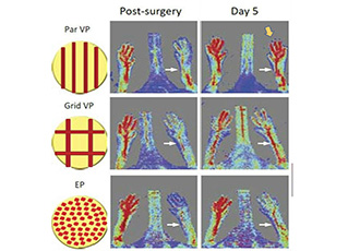 Implanted patches produce organised vascular networks