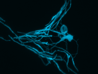 The formation of myelin sheaths around nerve fibres