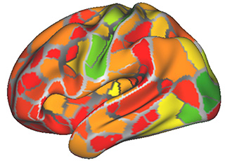 Brain scans may help diagnose psychiatric disorders
