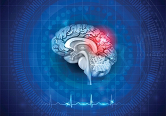 Clinical trial shows benefits of acute-stroke therapy