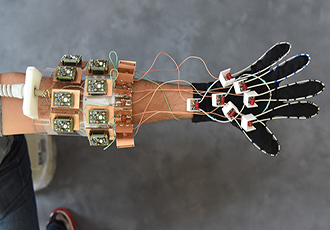 MRI glove provides insights into hand anatomy