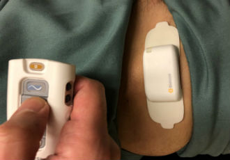 First successful implants of StimRouter Neuromodulation system