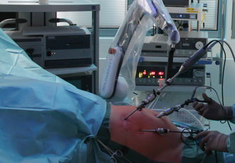 Better visibility: Robotic arm supports endoscopic surgeries