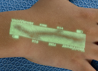 Near-infrared device makes it easier to find veins